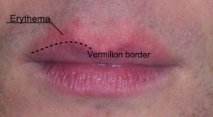 Erythema_around_the_lips