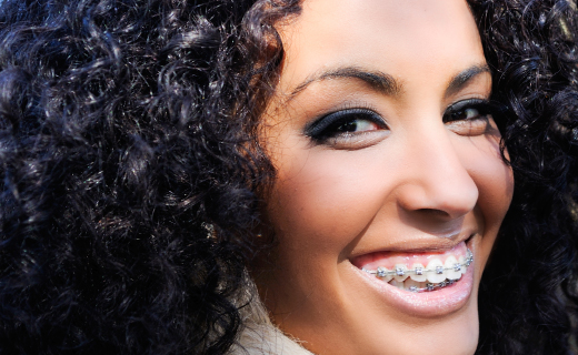 The Case For Braces For Adults Braces For Adults Miami